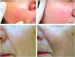cosmetic-treatment-laser-vein